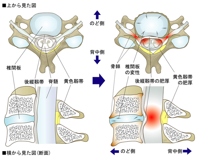性 頚椎 神経 症 症 完治 根