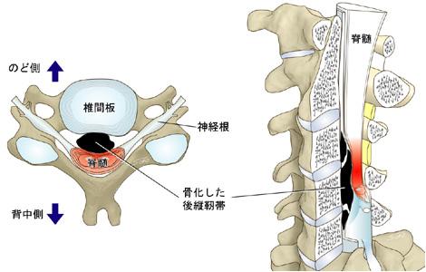 頚椎後縦靭帯骨化症(OPLL)|東...