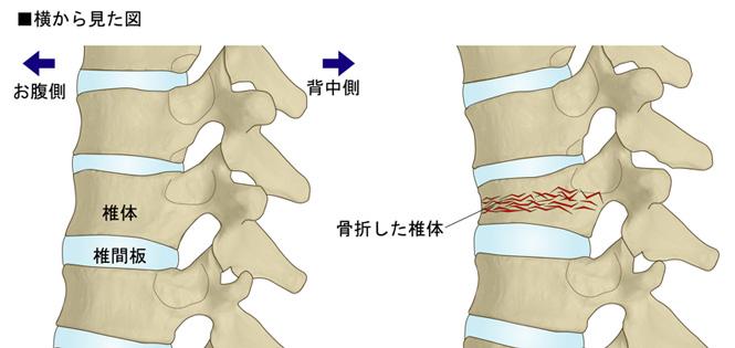 腰椎 圧迫 骨折 腰椎圧迫骨折について メディカルノート