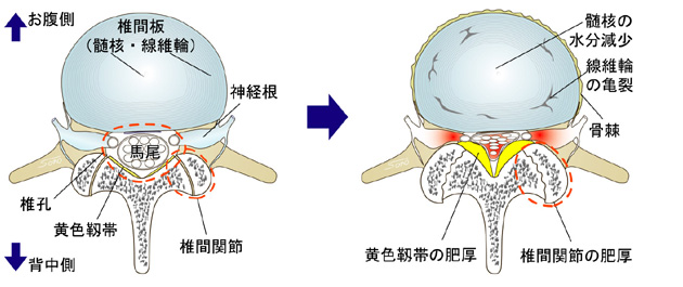 腰部脊柱管狭窄症|東名病院 内...